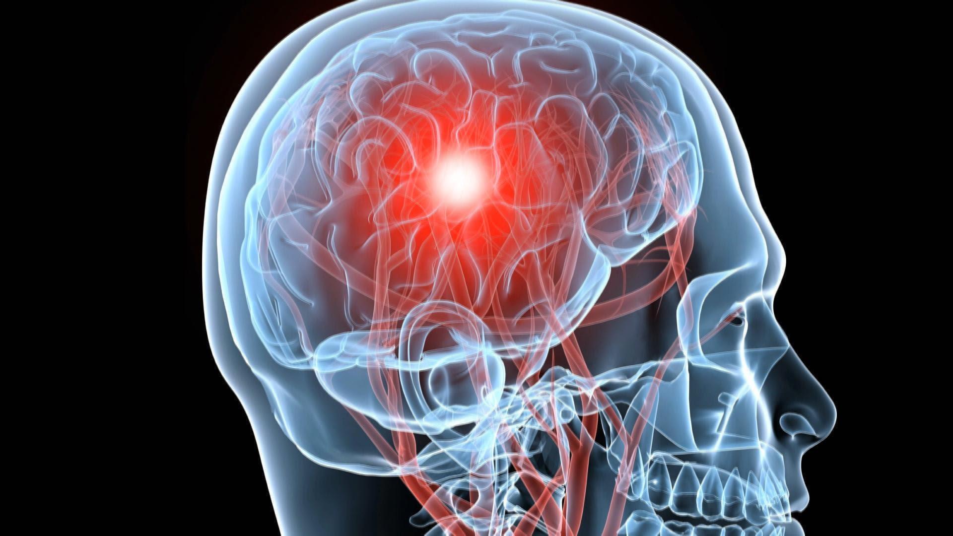 pierdere gravă în greutate după accident vascular cerebral